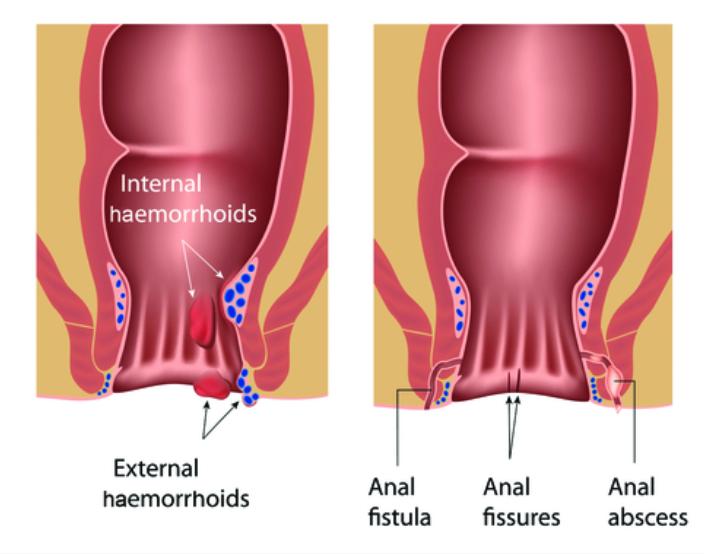 Piles Haemorrhoids Colo Rectal Surgeon Exeter Devon